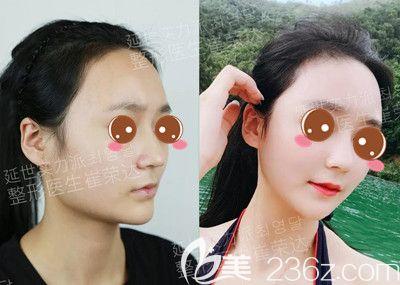 上海首尔丽格用真人案例图告诉你满足这些条件做出的下颌角才会更惊艳