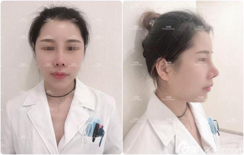 来自一名找南京华韩奇致韩国医生裴柄万做肋软骨隆鼻二次修复的心酸案例自述