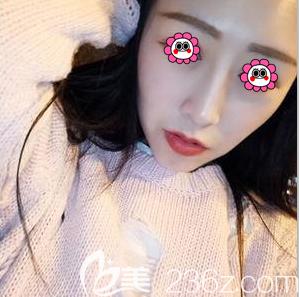 趁北京京民医院价格优惠我找王志坚医生做了硅胶隆鼻和假体垫下巴