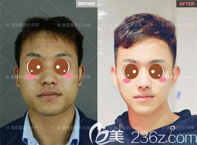 也许你和欧巴之间只差一个削骨,上海首尔丽格面部轮廓真人案例见证这些男人的蜕变之旅
