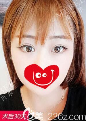 多亏南京美贝尔医生精心定制眼综合,让我明白明眸大眼绝不仅仅是一道褶子线
