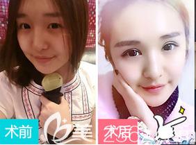 上海伊莱美双眼皮整形案例