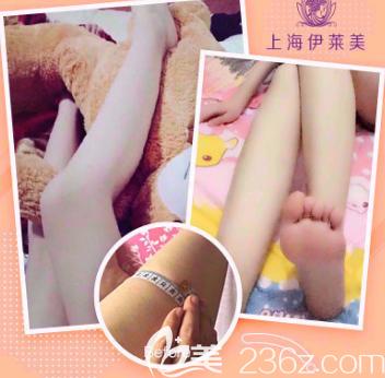 上海伊莱美吸脂案例