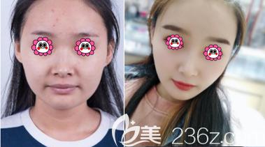 天津伊美尔医疗整形美容专科医院鼻综合案例