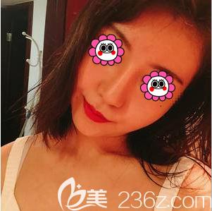 看了王志坚医生面部吸脂案例的对比照片后我就在北京京民做了面部吸脂
