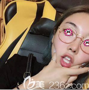 从在北京当代医院做鼻修复第100天效果来看当初我选择刘军医生没错