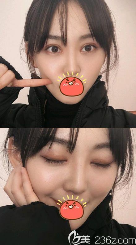 找杭州群项尚兴红做完全切双眼皮2个月已经达到闭眼无痕的效果了