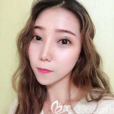 确定广州美恩是正规整形医院后找陈宏彬医生做了全切双眼皮和鼻综合隆鼻