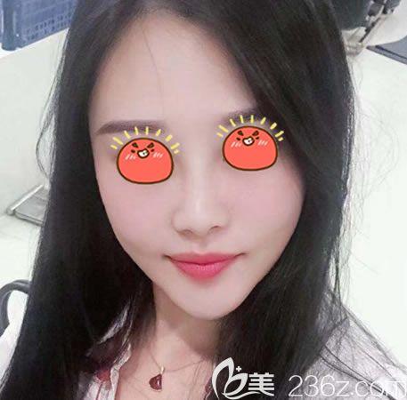 上周在杭州美联致美打过嗨体祛颈纹现又回来做了脸部线雕提升,半个月愉快的变美啦!