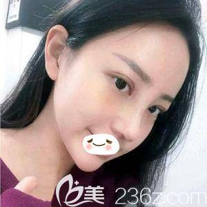 在郑州美丽时光眼综合鼻综合双管齐下,连挑剔的男朋友都直夸自然好看