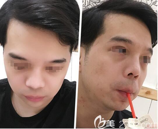 嘴唇较厚、下巴短小的面部两大缺陷在南京美贝尔做了厚唇改薄+假体垫下巴术后终于变帅了