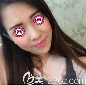 我在北京惠合嘉美找齐敏医生做玻尿酸垫下巴五天左右下巴基本消肿了