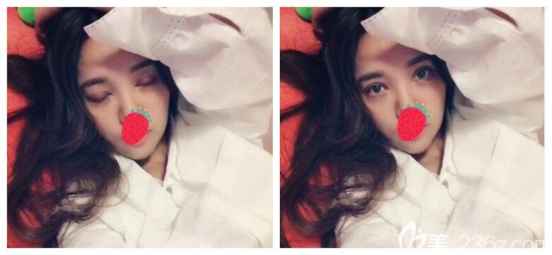 南京美贝尔眼综合+假体丰下巴案例分享:丑了20年变美只用了一个月