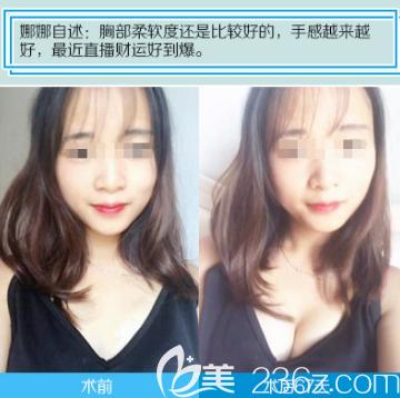 武汉涵美袁羽假体隆胸案例对比图