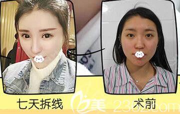 武汉美丽力量俞静硅胶隆鼻术后7天恢复效果与术前对比图