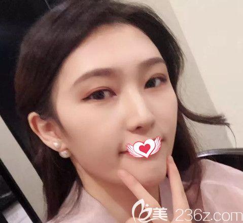 唐山花都赵宝霞医生做鼻综合整形2个月后让我由小土妹蜕变气质翘鼻女神