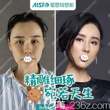 武汉爱思特杨水斌鼻综合隆鼻效果前后对比图