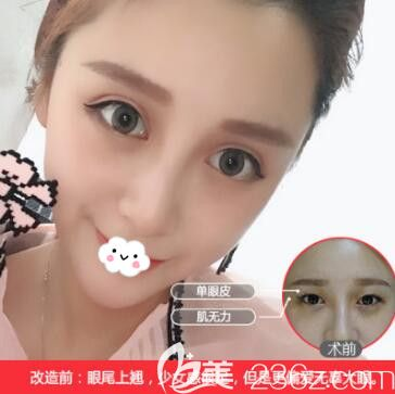 武汉中爱祁向峰双眼皮案例效果对比图