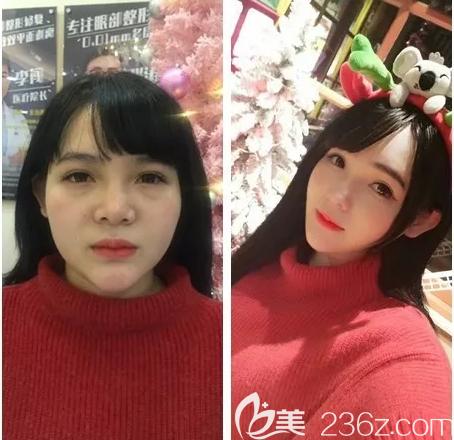 广州艺美张涛面部吸脂案例