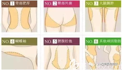 广州艺美吸脂部位图