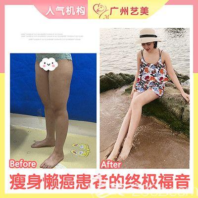 广州艺美张涛做的大腿吸脂案例