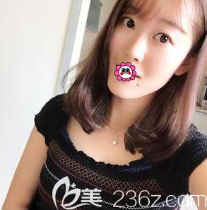 在北京叶美人找丁雅晴做内切祛眼袋第96天我才明白自己之前有多显老