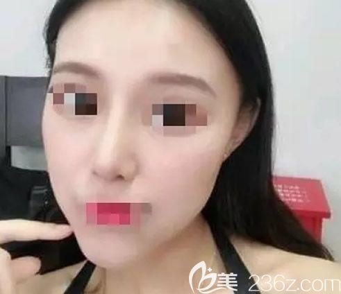 我鼻头肥大鼻梁短 找兰州黛美尔赵凌琪假体隆鼻+耳软骨综合隆鼻3个月后回头率暴涨