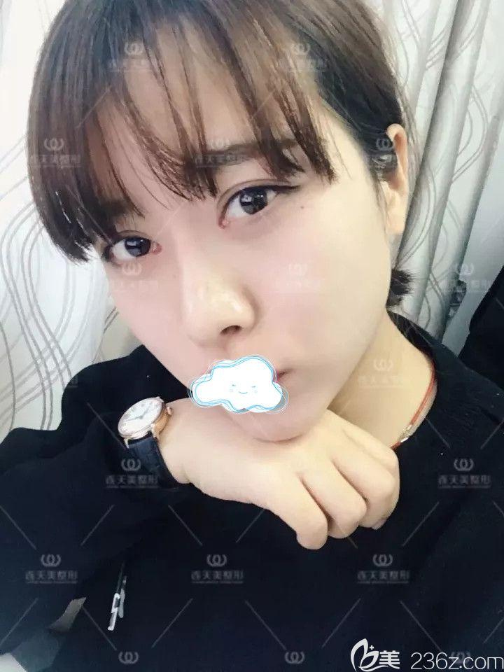南京连天美分享大美妞改造计划:多维吴痕双眼皮术+隆鼻术+隆下颌术后半年蜕变