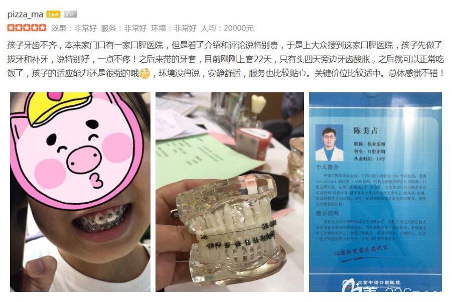 中诺口腔儿童兔牙、牙齿不齐矫正案例及评价反馈
