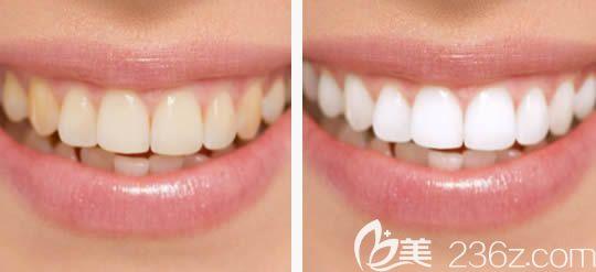 北京万柳圣贝牙齿美白前后对比照