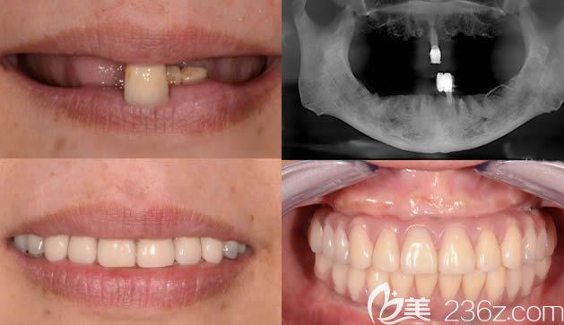 北京牙管家口腔全口种植牙案例效果对比图