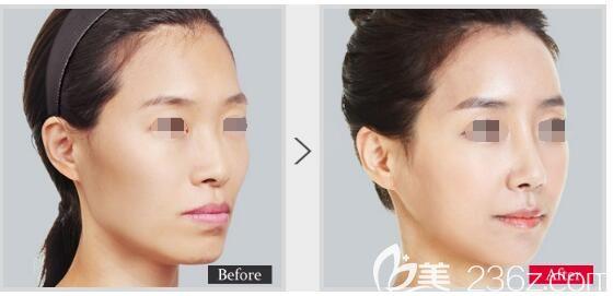 南京美贝尔3月优惠活动已开启 5000元代金券项目包含眼鼻脂肪填充玻尿酸等多个项目