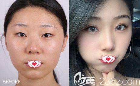 来看邯郸维多利亚整形3月8日女神节超值优惠美丽攻略 1680元就能get自然款双眼皮