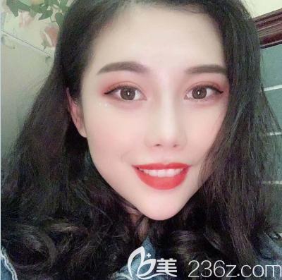 上个月我去广州韩妃找于洪瑞医生做了双眼皮开眼角手术,现在随便化个妆就美爆了