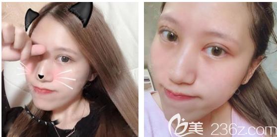 机智的我在大一开学前就找广州韩妃王媛医生做了双眼皮手术,计划暑假再去做个隆鼻
