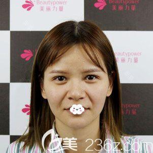 俞静假体垫鼻基底+鼻小柱延长+耳软骨垫鼻尖案例看武汉美丽力量鼻综合隆鼻效果怎么样?
