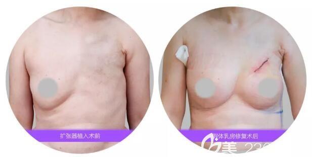 乳房切除者福利来了!南京美莱内窥镜隆胸技术首批专家夏建军隆胸修复获赠锦旗致谢