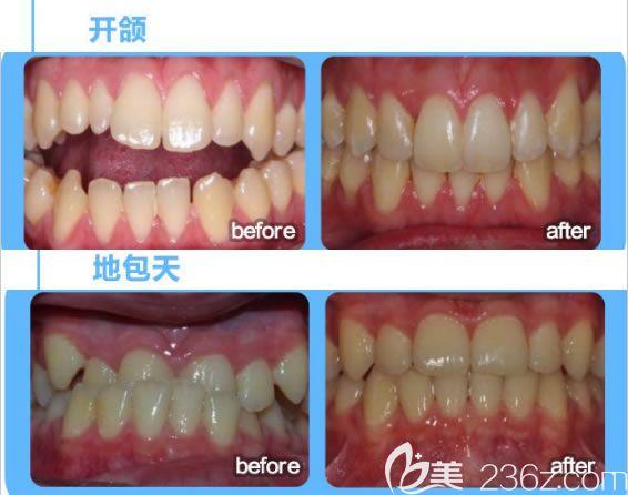 深圳诺德齿科牙齿开颌矫正及成人地包天矫正前后对比效果