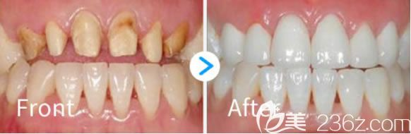 诺德齿科烤瓷牙修复前后对比效果