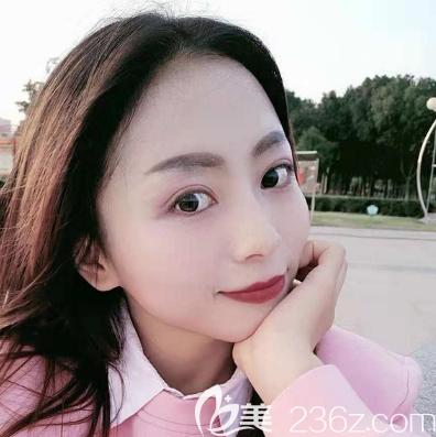 很幸运找到广州紫馨李政佑医生做了双眼皮修复手术,现在的眼睛比之前好看多了