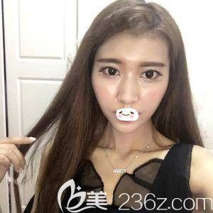 打过瘦脸针之后又到郑州欧兰找徐海坤做了面部自体脂肪填充 我也成了冻龄少女