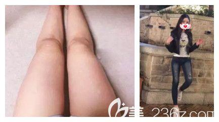 承德玥莱美3月整形福利大放送 吸脂瘦腿及纹眉都只要980元