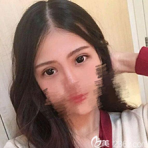 西宁韩美闵英俊做的全切双眼皮+开眼角,让我轻松拥有属于自己的双眼皮
