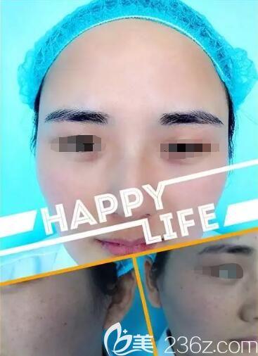 体验苏州瑞芙臣果酸换肤全过程分享,改善内分泌失调外加毛孔堵塞形成的痘痘一个疗程效果对比