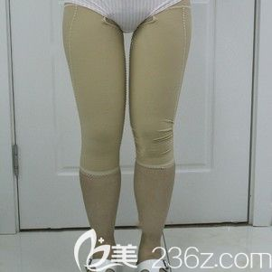 哈尔滨雅美肖征刚大腿吸脂术后7天展示照