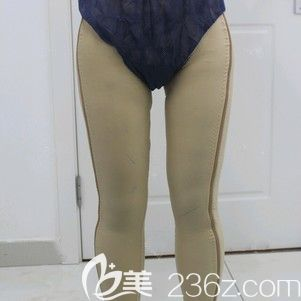 哈尔滨雅美肖征刚大腿吸脂术后2天