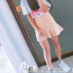 哈尔滨雅美肖征刚大腿吸脂术后40天案例