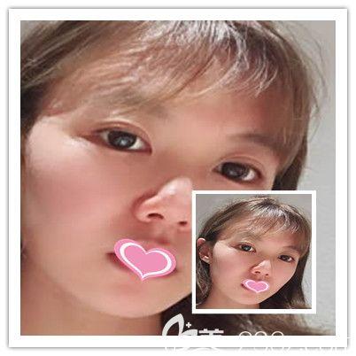 哈尔滨雅美面部线雕术后13-25天效果图