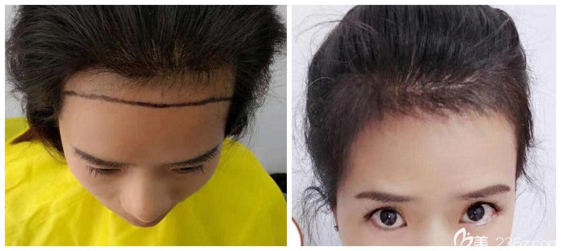 合肥植发医院哪个好?公布合肥壹美尚方蜜女性发际线种植案例