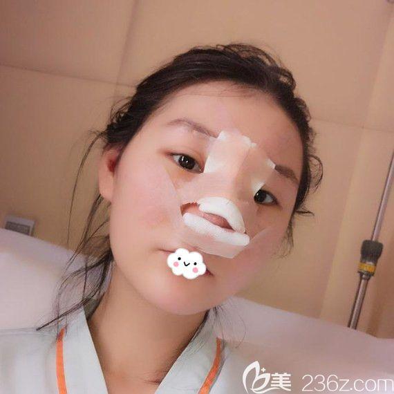 武汉艺星杨国梁假体隆鼻+耳软骨垫鼻尖案例